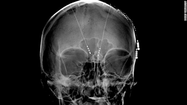 More evidence that deep brain stimulation may help treat mental illness
