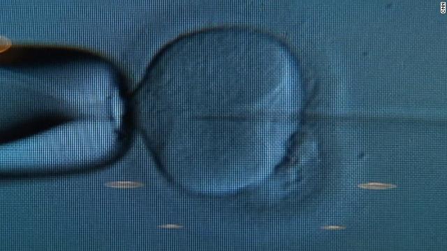 Costa Rica deberá practicar fecundaciones in vitro