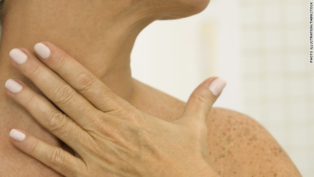 What the Yuck: Paralyzing hickeys