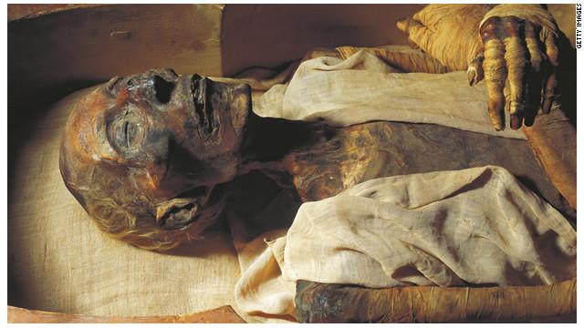 Una momia puede ayudar a descifrar las causas del cáncer de próstata