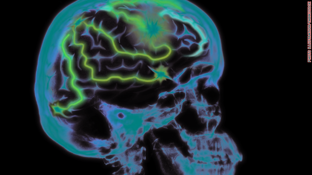 Could stimulating the brain one day treat Alzheimer's disease?