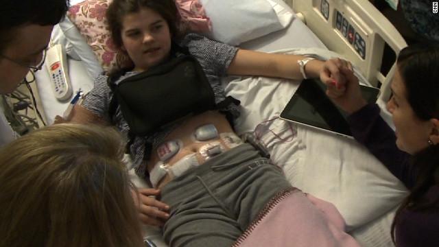 Un páncreas artificial puede ayudar a controlar la diabetes en los niños