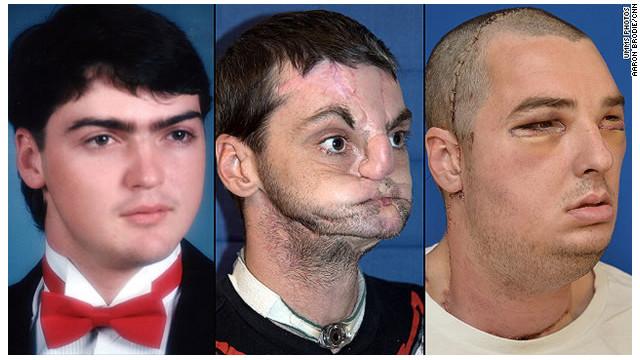 Realizan con éxito el trasplante de cara más completo jamás hecho