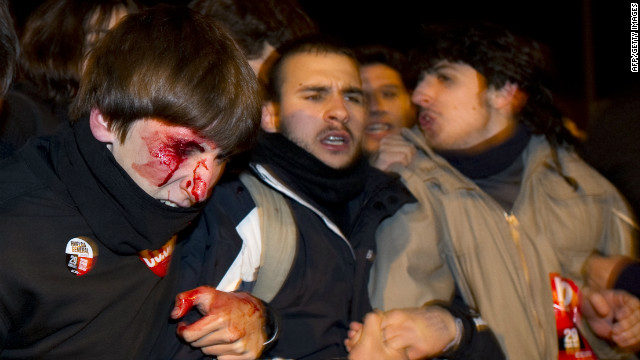 A man is seen bleeding after being struck by police during a national strike in Madrid on March 29.