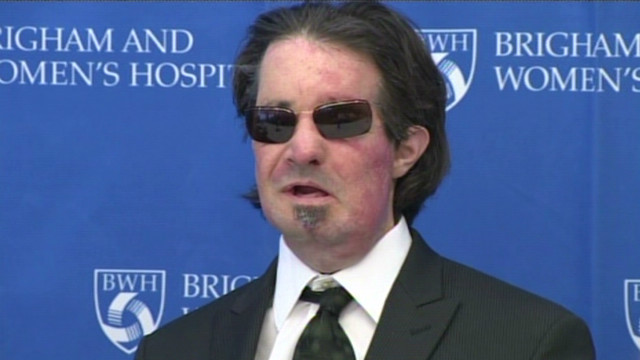 One year later: Full face transplant recipient reflects on life
