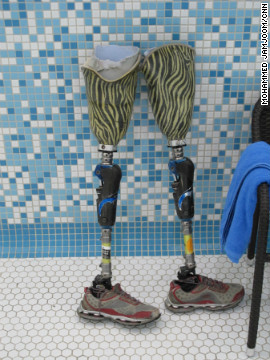 Malik lost his legs at the age of 11 when he stepped on landmines in Kabul.