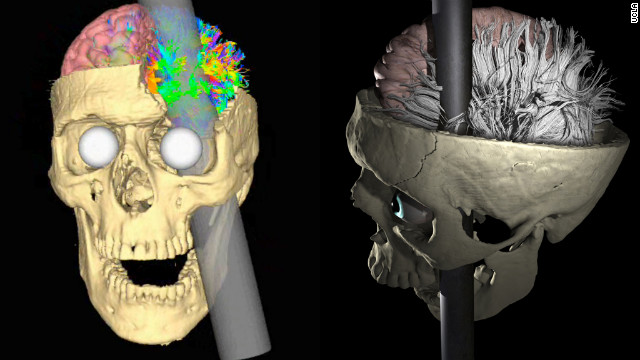 The curious brain impalement of Phineas Gage