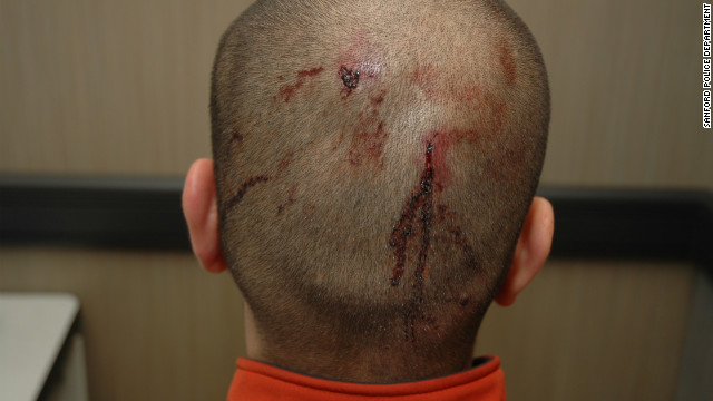 "Zimmerman says he shot Martin in self-defense. Martin's attorneys say he was shot and killed ""in cold blood."""