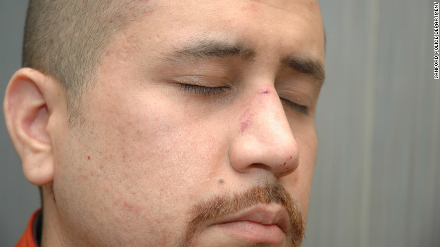 According to a fire department report, Zimmerman had &quot;abrasions to his forehead,&quot; &quot;bleeding/tenderness to his nose&quot; and a &quot;small laceration to the back of his head&quot; when he was treated at the scene.