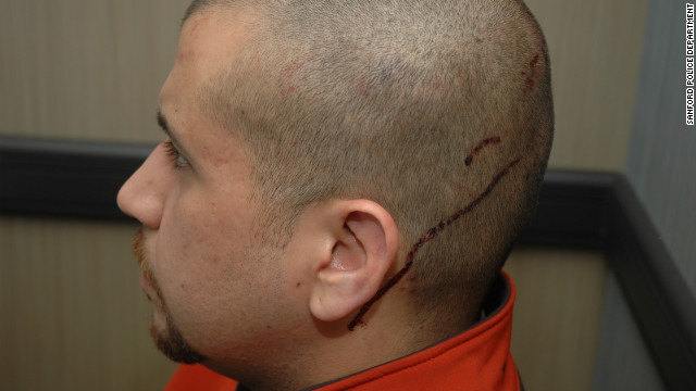 Zimmerman said that before he shot the teenager, he was &quot;assaulted (by Martin) and his head was struck on the pavement,&quot; according to a police report.