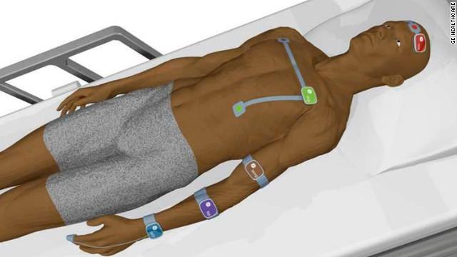 Un dispositivo inalámbrico para monitorear signos vitales