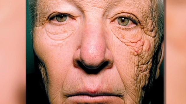 Una foto muestra los devastadores efectos del sol en la cara