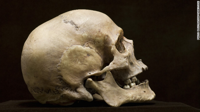 Americans' heads have been growing, scientists say