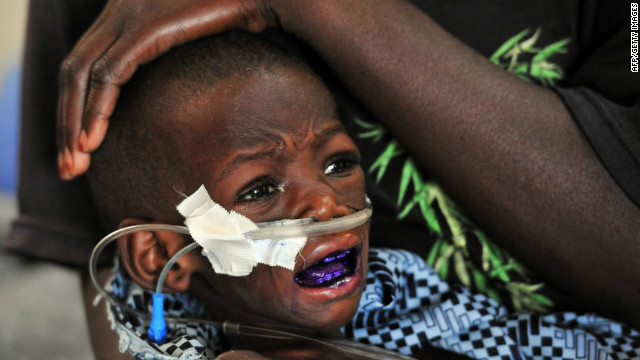 A mother touches the head of her child suffering from severe malnutrition at medical center in Niger.