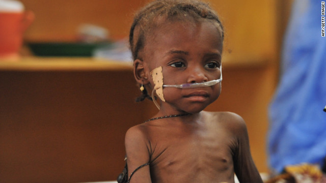 A 3-year-old girl with severe malnutrition finds care in a medical tent in Niger on May 31. West Africa is in a food crisis.