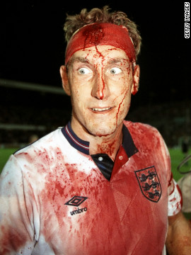 This iconic image of bloodied former England defender Terry Butcher taken in 1989 during a World Cup qualifier embodies the &quot;warrior&quot; style in which the country has always played. It is an approach based on bravery, endeavour and hard work but it has not brought any success since the 1966 World Cup -- England's only major tournament victory.