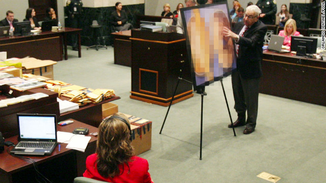 Dr. Werner Spitz, a forensic expert, testifies for the defense on Saturday, June 18, 2011. (Note: Per instruction from the court, the photo that he's using, which shows the skull of Caylee Anthony, has been digitally obscured.)