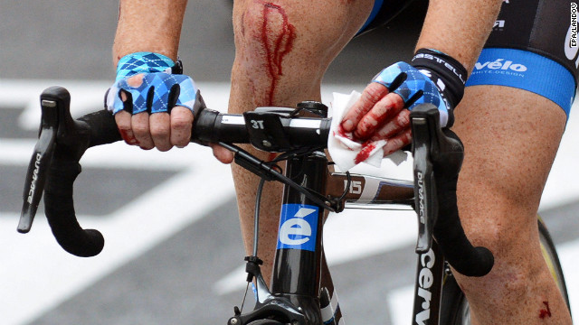 Farrar bleeds from multiple wounds as he rolls through to the finish line after crashing in the final sprint Thursday.