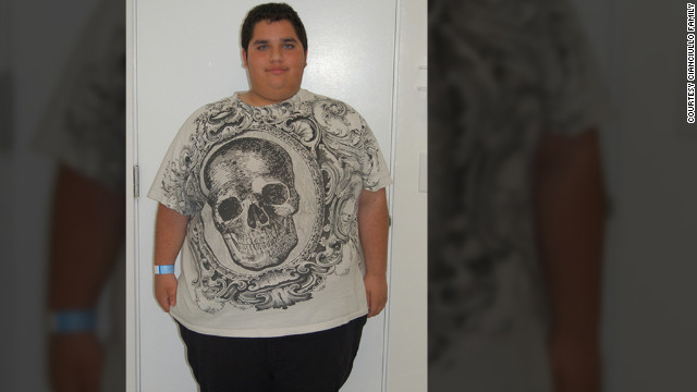 Before the surgery, Matt Cianciullo weighed 333 pounds and was on medication to lower his cholesterol.