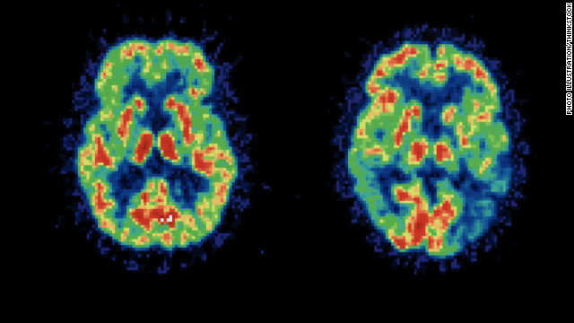 Study: Stutterers' brains affected after 1 week of therapy
