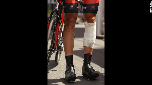 British rider Stephen Cummings wears bandages on his legs.