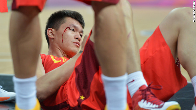 Chinese forward Zhu Fangyu bleeds during a men's preliminary round basketball match between China and Australia.