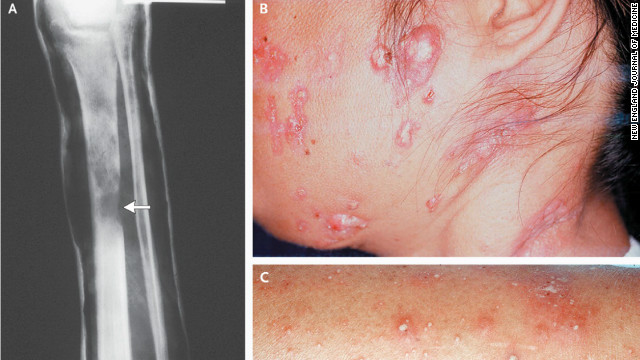 These are common disease manifestations in patients with anti-interferon- autoantibodies, according to researchers.