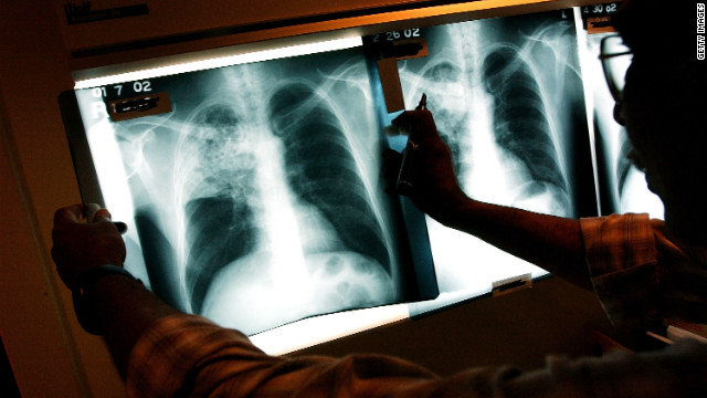 Fight against tuberculosis a mixed bag