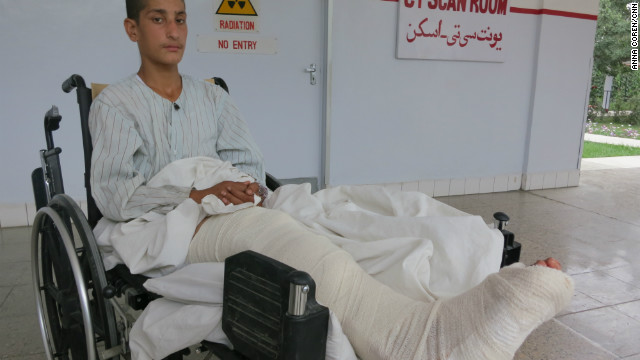 Naweed Tanha, 17 was badly injured in the blast and is recovering in hospital in Kabul. &quot;I am so upset for losing my friends,&quot; Naweed told CNN. &quot;What kind of people would do this? Why are they continuing to do this? It is ruining our country and our future. &quot; 