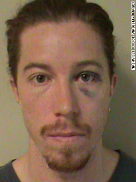 Olympic gold medalist Shaun White, 26, was charged with vandalism and public intoxication in Nashville, Tennessee, on September 16.