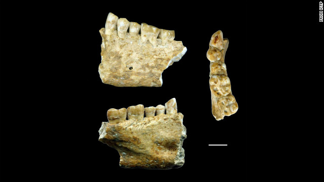Oldest tooth filling may have been found