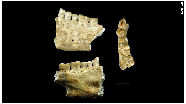 ¿Existían los dentistas en la prehistoria?