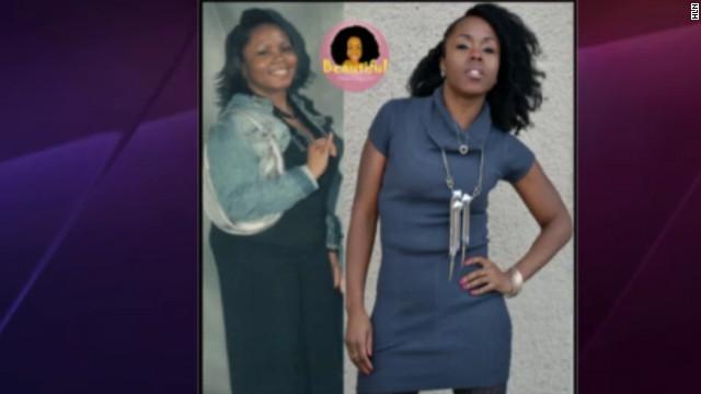 Una mujer perdió 45 kilos y no volvió a engordar