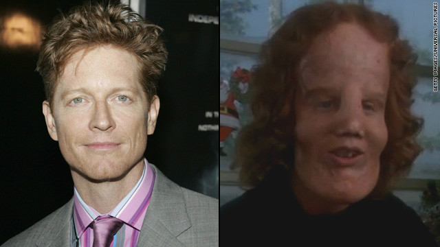 "The makeover for Eric Stoltz in 1985's ""Mask"" was astounding as Stoltz portrayed ""Rocky"" Dennis, a boy trying to live a normal life with the disorder lionitis. The transformation picked up an Oscar for best makeup."