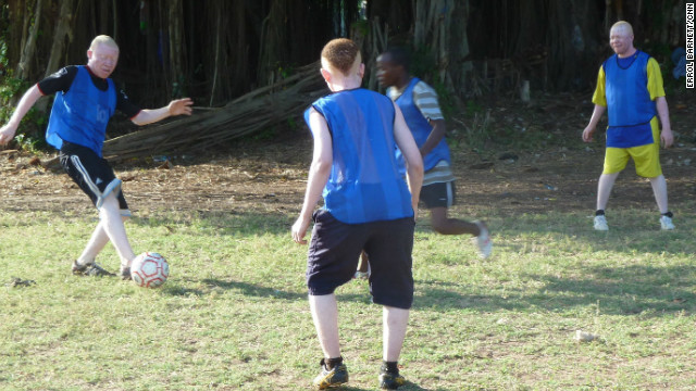 Musa has found support through an informal football team made up of people with albinism. Albino United hope to dispel myths about people with the genetic disorder.