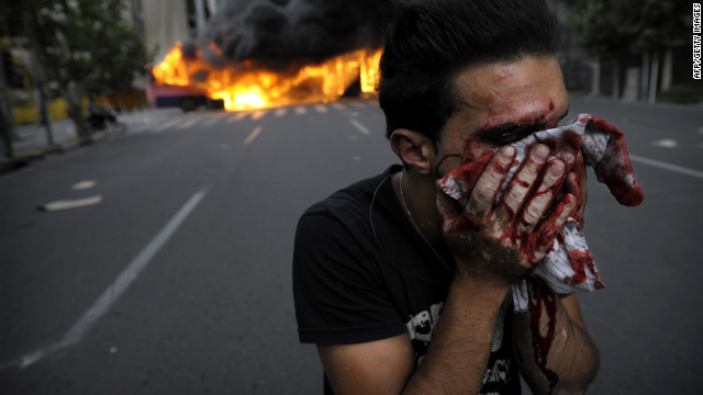 An injured protester covers his face during riots in Tehran in 2009. Iran's disputed election triggered mass opposition protests.