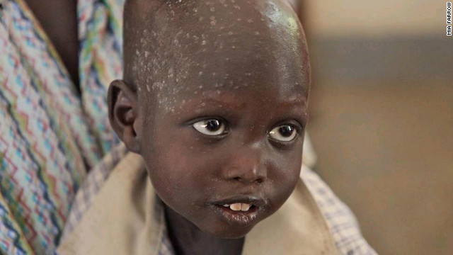 A young child in Juba, South Sudan, in March 2011, who was at a UNICEF supported hospital where he received ready to use fortified food.