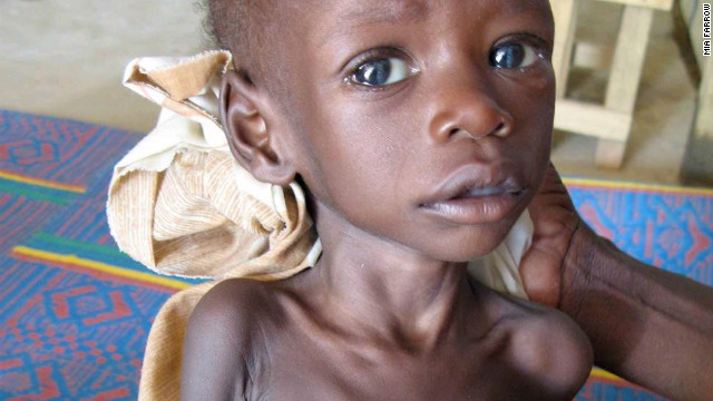 An emaciated child in Eastern Chad in 2006. UNICEF estimates that worldwide around 170 million children under the age of five are stunted. The condition inhibits the development of their bodies and brains.