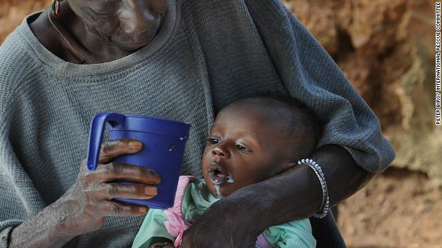 La hambruna en Malí incrementa en el Día Mundial de la Alimentación