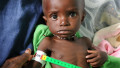Medical workers at the clinic in Kati measure the upper arm of Bourama Togo whoi is suffering from acute malnutrition.