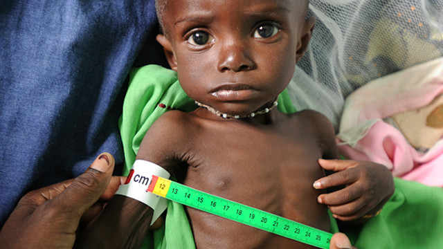 Medical workers at the clinic in Kati, measure the upper arm of Bourama Togo. The result shows that he is suffering from acute malnutrition.