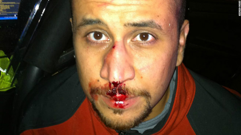 A photo posted online Monday, December 3, shows George Zimmerman with blood on his nose and lips. His attorneys say it was taken the night unarmed teen Trayvon Martin was killed in Sanford, Florida. Zimmerman, 28, faces second-degree murder charges in the death of Martin in Sanford, Florida, on February 26, 2012. Other evidence photos were released earlier this year: 