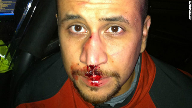 Tonight on AC360: Bloody photo of George Zimmerman released