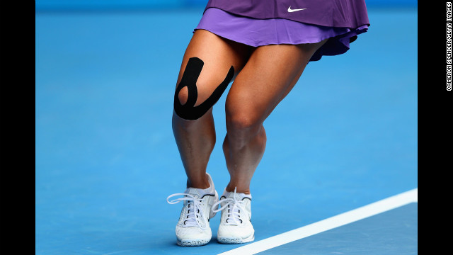 Li serves in her match against Radwanska on January 22.