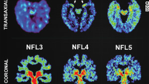 Players\' brain scans