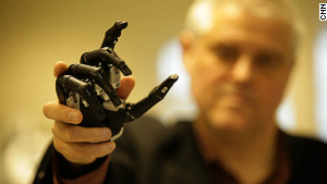 Prosthetic limb with a human touch