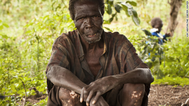 James Waya, 67, lives in North Liwa Village, Uganda. Waya suffers from leopard skin, which affects many people with river blindness. Thanks to The Carter Center and its partners, including the national river blindness program, James has been receiving ivermectin treatment for more than seven years and no longer experiences the intense itching and other ill effects associated with the disease. &lt;!-- --&gt;