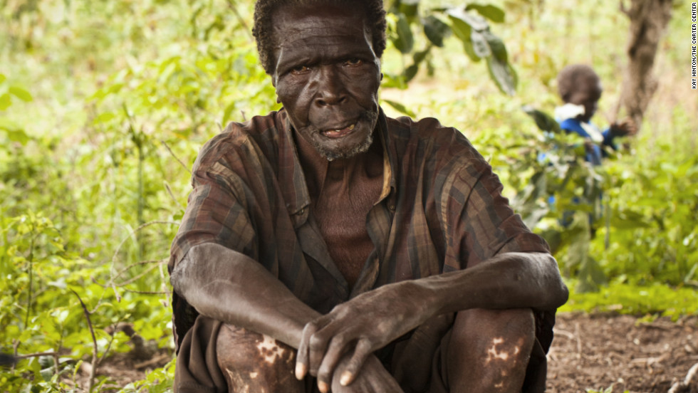 James Waya, 67, lives in North Liwa Village, Uganda. Waya suffers from leopard skin, which affects many people with river blindness. Thanks to The Carter Center and its partners, including the national river blindness program, James has been receiving ivermectin treatment for more than seven years and no longer experiences the intense itching and other ill effects associated with the disease. <!-- --> </br>
