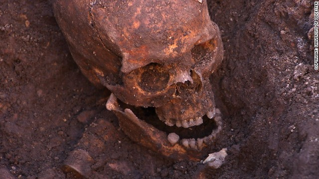 The skeleton was discovered buried among the remains of what was once the city's Greyfriars friary, but is now a council car park. The skull was found in the first trench of the Grey Friars dig.