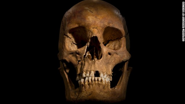 "British scientists announced Monday, February 4, that they are convinced ""beyond reasonable doubt"" that a skeleton found during an archaeological dig in Leicester, central England, last August is that of the former king, who was killed at the Battle of Bosworth Field in 1485. The skull shows a wound to the right cheek."